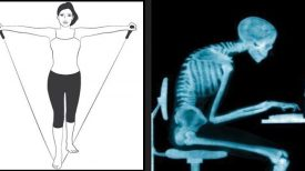 Dites adieu aux douleurs du cou et de l'épaule avec ce simple exercice1